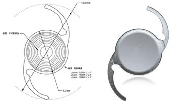 白内障と多焦点眼内レンズ